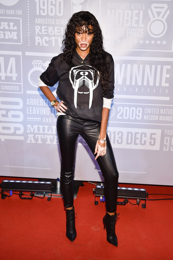 Winnie Harlow na Annual Giant of Africa, Air Canada Centre, Toronto, prosinec 2015 Autor: George Pimentel/WireImage/Getty Images