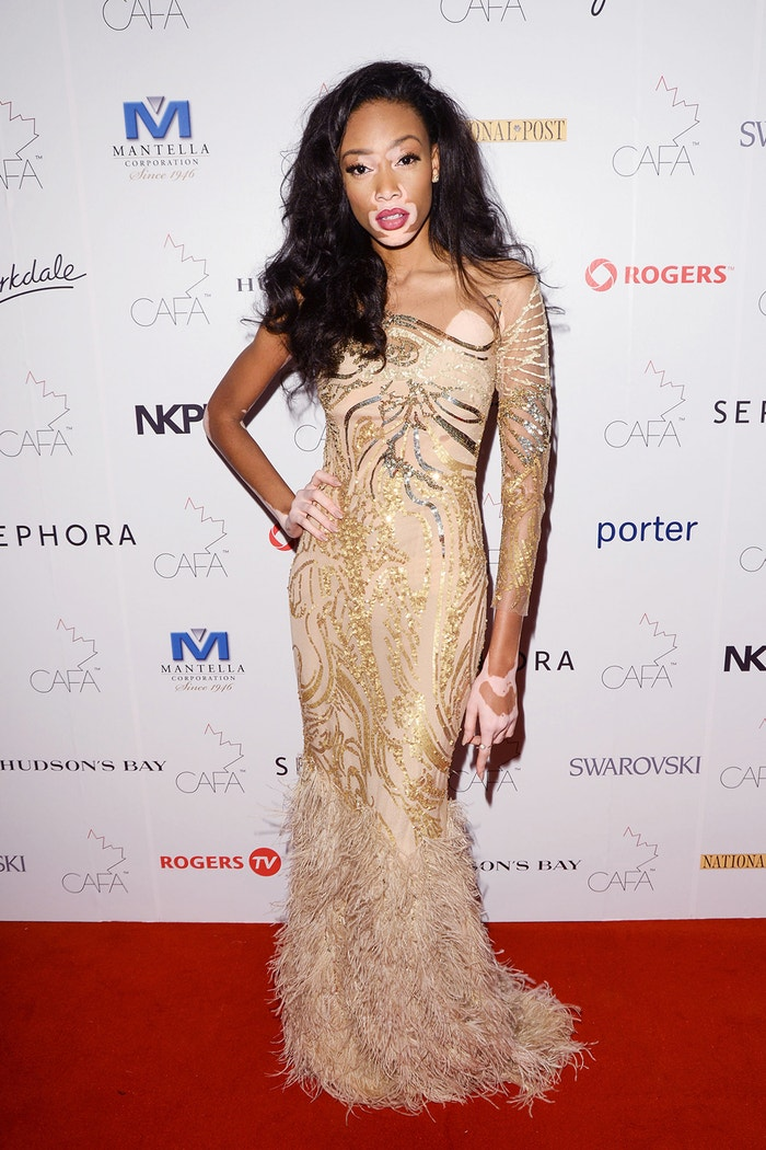 Winnie Harlow na Annual Canadian Arts And Fashion Awards, Toronto, leden 2015 Autor: George Pimentel/WireImage/Getty Images