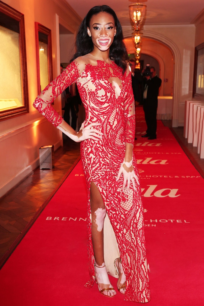 Winnie Harlow na Gala Spa Awards 2015, Brenners Park-Hotel & Spa, Baden-Baden, březen 2015 Autor: Gisela Schober/Getty Images